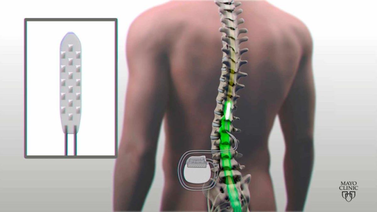 Resultado de imagem para Homem paralisado mexe as pernas graças a implante eléctrico